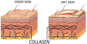 causes-dry-skin