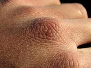 42417-425x319-dry_hand